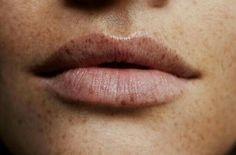 Fashion Gone rouge/freckled lips