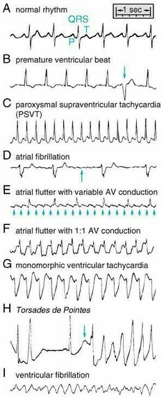 Heart Rhythms Made Easy Ecg Nursing School Tips, Nursing Tips, Nursing Notes, Nursing Schools, Study Nursing, Ob Nursing, Medical School, Medical Students, Nursing Students