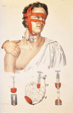 """ICONOGRAFIA D'ANATOMIA CHIRURGICA E DI MEDICINA OPERATORIA. CON TAVOLE LITOGRAFICHE AL NATURALE, 1851 (https://pinterest.com/pin/287386019949931346), Tom. 1. """"Trattato completo dell'anatomia dell'uomo riguardante la medicina operatoria ossia anat... https://pinterest.com/pin/287386019941966857"""". J.-B. M. Bourgery (https://pinterest.com/pin/287386019948321810), Claude Bernard (https://pinterest.com/pin/287386019942415176), N. H. Jacob. See: https://pinterest.com/pin/287386019942813977"""