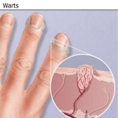 Natural Cure For Warts - How To Cure Warts Naturally | Home Remedies, Natural Remedy http://www.wartalooza.com/general-information/hand-warts