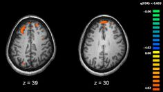 Studies confirm that brain plaque can help predict #AlzheimersDisease. http://nyti.ms/1Gw1AA8