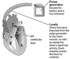 Biventricular Pacemaker/ICD