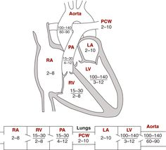 Image: Diagrams indicating normal pressures in the cardiac chambers &…