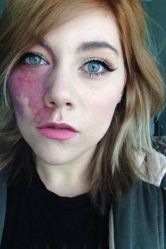 port wine stain birthmark on face Woman Told She Was Too Ugly To Love And Undateable Proudly Shows Facial Birthmark - Shes Tired Of Hiding Under Make-Up Pretty People, Beautiful People, Vitiligo Treatment, Pelo Natural, Human Body, Character Inspiration, Portraits, Poses, Characters