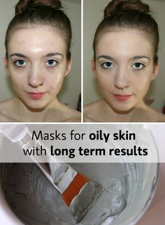 Oily skin is definitely a problem we want to solve. I'll give you 2 recipes that I tried and that work like long term treatments, together with some advice.