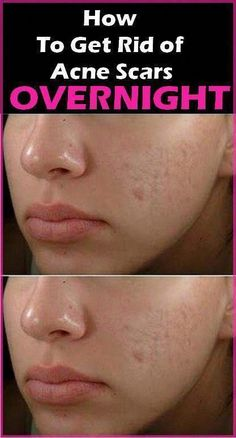 Find out how to Get rid of Saggy Skin On Stomach How To Grow Eyebrows, How To Apply Makeup, Get Rid Of Blackheads, Pimples, How To Get Rid Of Acne, How To Remove, Tighten Stomach, Lower Stomach, Skin Bumps