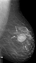 How are breast lumps treated? If a lump is proven to be cancer, surgery is usually performed. Depending on the extent of the cancer, you may have the option of undergoing mastectomy (removal of the breast) or breast conservation therapy (removal of the tumor and tissue surrounding it). Your doctor will provide you with the information necessary to make this decision. Pictured:  Breast tomosynthesis image of a patient's left breast with a lump.