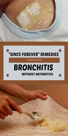 Bronchitis is a condition in which the bronchus swells in the lungs. Bronchitis can be acute or chronic. Natural Health Remedies, Herbal Remedies, Pnemonia Remedies, Natural Cough Remedies, Chest Infection Remedies, Chest Congestion Remedies, Best Cough Remedy, Home Remedies For Bronchitis, Cough Remedies For Kids