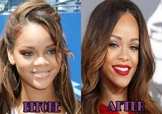 Rihanna Nose Job Plastic Surgery before and after Pictures are displayed above and reasons are also mentioned along the pictures that why she got admitted to go under knife being a famous celebrity. Description from beforeandafterceleb.com. I searched for this on bing.com/images