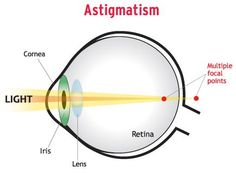 Astigmatism results in two points of focussed light in front or behind the retina. This causes blurred vision in the distance and up close.