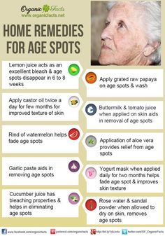 Home remedies for age spots include, lemon juice, onion, apple cider vinegar… Natural Cures, Natural Skin, Natural Health, Health And Beauty Tips, Health Tips, Belleza Natural, Beauty Recipe, Organic Oil, Homemade Beauty