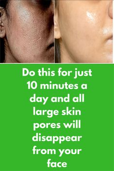 Do this for just 10 minutes a day and all large skin pores will disappear from your face Today I am going to share 3 very simple and effective natural remedies that will shrink your large size skin pore and in just few days your skin will start to look smooth and softer Remedy 1 For this you will need green tea water. Jsut prepare some green tea using unflavourd green tea powder. …