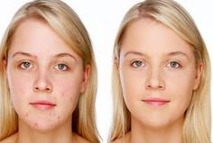 My way: How to Eliminate Acne Naturally And Fast Stone