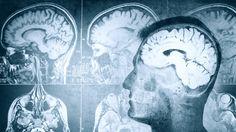Gadget ins Gehirn transplantiert: Dieses Startup will euer Gedächtnis verbessern - http://ift.tt/2b74tke