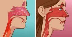Zbavte sa infekcií nosových dutín už za 20 sekúnd, ide o najjednoduchší spôsob | Báječné Ženy