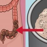 Death begins in the colon.' Colon cleanse is one the methods to take care of your colon. So said Hippocrates of Cos the ancient Greek physician Homemade Colon Cleanse, Colon Cleanse Detox, Cleanse Diet, Juice Cleanse, Health Benefits, Health Tips, Health Care, Combattre Le Stress, Colon Irritable