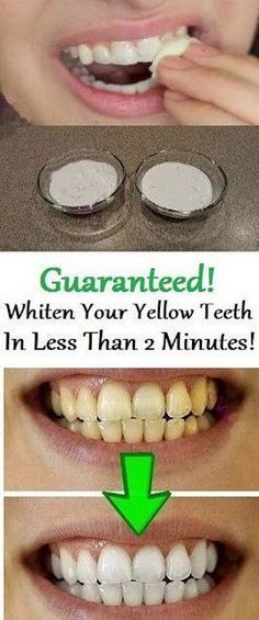 Natural Teeth Whitening Remedies how to whiten teeth naturally at home without having to pay a visit to your dentist Teeth Whitening Methods, Natural Teeth Whitening, Whitening Kit, Skin Whitening, Beauty Hacks For Teens, Teeth Care, Smile Teeth, Everyday Makeup, Homemade Cosmetics