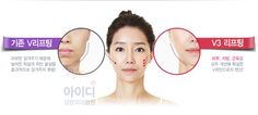 #아이디성형외과 korean plastic surgery before and after #V3리프팅 으로 v라인 만들어보세요! ^^