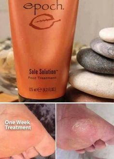 Don't want crack, dry heels and feet no more? Sole Solution is the answer…. Features crushed allspice berry—traditionally used by … Dry Cracked Heels, Cracked Skin, Epoch Sole Solution, Dry Heels, Dry Skin Remedies, Red Skin, Wrinkled Skin, Layers Of Skin, Hair And Beauty