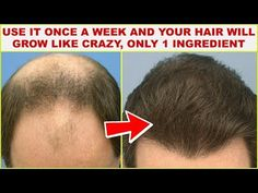 Use It Once a Week and Your Hair Will Grow Like Crazy, Only 1 Ingredient