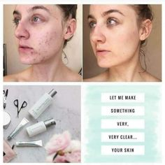 Nuskin's Clear Action Acne range is a medical treatment solution that actually works! DM me for prices! Galvanic Spa, Healthy Skin Care, Beauty Secrets, Beauty Products, Clear Skin, Beauty Care, Your Skin, Photo And Video, Health