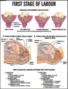 3 Phases of Labor   Understanding the Stages of Labour is ...