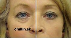 Here are 2 solutions to under eye wrinkle problems and eye bags. Under eye bags and wrinkles can age a person quite a bit. Best Oil For Skin, Oils For Skin, Under Eye Wrinkles, Prevent Wrinkles, Face Wrinkles, Masque Anti Ride, Argan Oil Serum, Argan Oil Eye Cream, Beauty Secrets