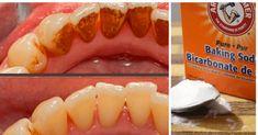 En apenas 3 minutos, esta mezcla promete eliminar la placa dental y sarro – e-Consejos