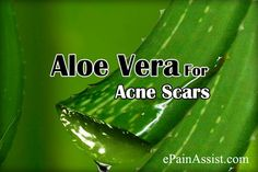 Quick Ways to Get Rid of Acne Scars Read: http://www.epainassist.com/articles/quick-ways-to-get-rid-of-acne-scars