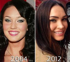 Megan Fox cheeks before and after photo Megan Fox Face, Megan Fox Eyebrows, Megan Fox Sexy, Megan Fox Makeup, Megan Denise Fox, Megan Fox Before After, Eyebrow Before And After, Megan Fox Plastic Surgery, Face Plastic Surgery
