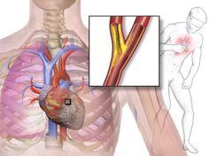 4 señales del infarto, detéctalas y salva una vida.