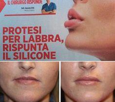 LABBRA ELASTOMERO PERMALIP: ELASTOMERO PER il disegno delle labbra e poi di volume 👄👄👄👄 TODAY on MAGAZINE COSÌ' . Permalip™ is made of very soft, solid silicone which is tapered at each end to match the natural shape of the lips. #giacomourtis #drurtis #drurtiscoinic #drurtisclinic #chirurgiaestetica #permalip #elastomero #silicone #silicon #medicinaestetica #plasticsurgery #cirugiaestetica #lipaugmention #istitutodermoestetico #labbra #lip…
