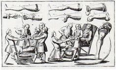 This curious woodcut is found in Lorenz Heister's (1683-1758) Chirurgie, in welcher alles, was zur Wundarzney gehöret, nach der neuesten und besten Art, gründlich abgehandelt, und in 38 Kupfertaf, die neuerfundene und dienlichste Instrumente, nebst den bequemsten Handgriffen der chirurgischen Operationen und Bandagen deutlich vorgestellet werden.