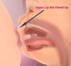 Read about how upper lip tie is evaluated and treated.