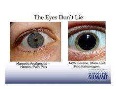 The Eyes Don't LieNarcotic Analgesics – Meth, Cocaine, Ritalin, Diet Hero. Pharmacology Nursing, Icu Nursing, Nursing Information, Psych Nurse, Mental Health Nursing, Nursing School Notes, Medical School, Medical Anatomy, Emergency Medicine