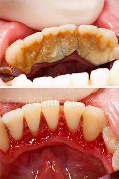 Di le adiós al sarro de los dientes en casa sin gastar dinero en el dentista.