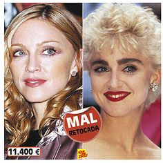Madonna Plastic Surgery Before And After Plus The Gap
