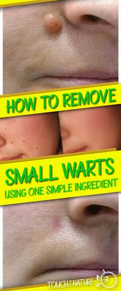 How To Remove Small Warts Using One Simple Ingredient – Touch Of The Nature