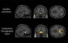 porn-addiction-brain-scan.jpg