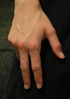 http://ekoh-stock.deviantart.com/art/Casual-Hands-Stock-Package-91834875