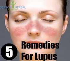 5 Remedies For Lupus - How To Treat Lupus Naturally | Search Herbal & Home Remedy