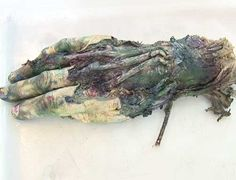 """The hand that never stopped painting..."". Morten Viskum used a hand from a corpse as a paint brush."