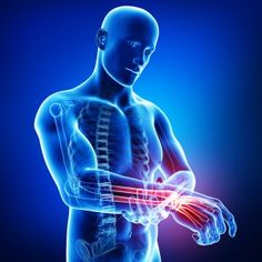 Different condtions/injuries that can happend to the Hand, Wrist, Fingers or Elbow