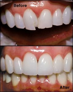 Bonding with Composite Fillings can fix chips in teeth