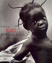 Fotografia Documental: El día que Kadi perdió parte de su vida, por Kim Manresa