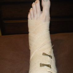 How to cope with a broken ankle and the recovery process.