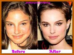 celeb plastic surgery