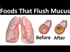 8 Foods That Flush Mucus From Your Body. How to get rid of mucus. How to Get Rid of Phlegm. Get Rid of Mucus in Your Chest. Food choice plays an important ro. Clear Mucus From Throat, Mucus In Throat, Clear Lungs, Phlegm In Throat, Getting Rid Of Mucus, Getting Rid Of Phlegm, Phlem Remedies, Health Remedies, Mucous Relief