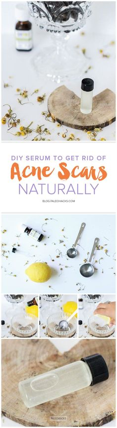 In this recipe, we'll create a simple DIY serum you can use to spot treat acne scars. However, it's also great for treating aging spots (and smells delicious!) Get the recipe here: http://paleo.co/acnescarsserum