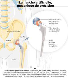 Prothèse de hanche : des matériaux à l'épreuve du temps- 20 mars 2014 - Sciencesetavenir.fr